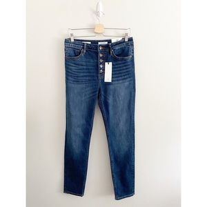 Vigoss Ace Skinny Jeans